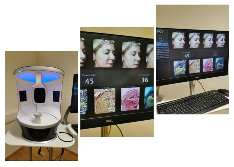 conny doll lifestyle: la pura women's health resort, wellness, gesundheit, 3D-Gesichtshautanalyse, Healty aging, Gesicht,